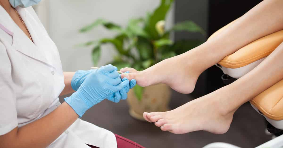 Nail Fungus Treatment Toronto Laser Fungal Nail Treatment